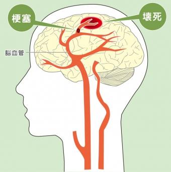 田中裕二が手術しない理由はなぜ?今後の治療はどうなる?脳梗塞とくも膜下出血で入院