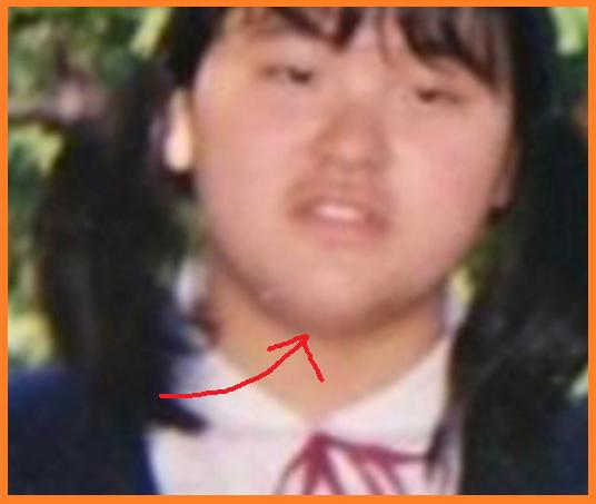 ぼる塾田辺智加が太った理由はなぜ?現在・過去の体重や顔画像を紹介!